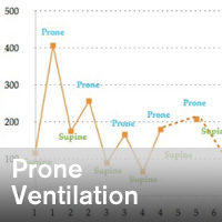 Persevering With Prone Ventilation in Coronavirus Disease 2019 Pneumonia - ~/sccm/media/covid19rl/COVID19-Prone-Ventilation.jpg?ext=.jpg